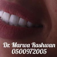دكتورة مروة رشوان
