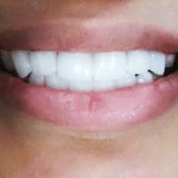 دكتورة حنين الشعباني الأسنان